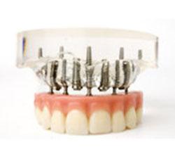 Zahnersatz und Implantate